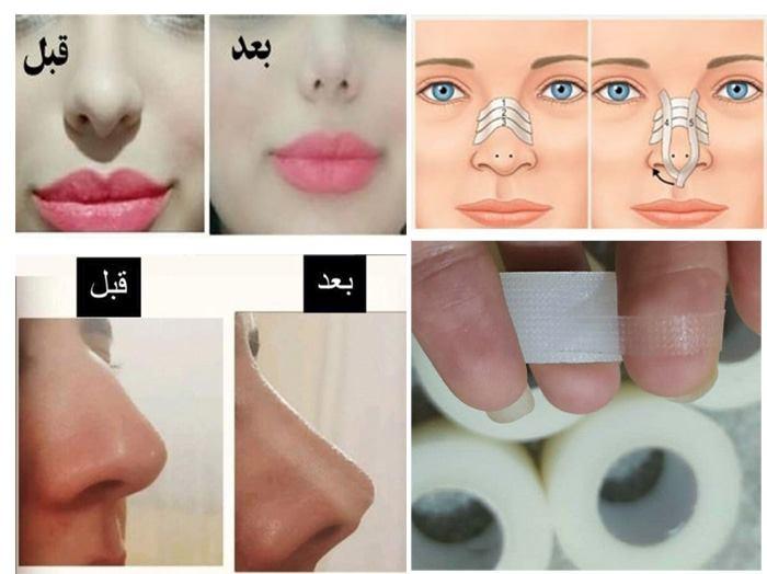 چسب لیفت بینی قبل و بعد