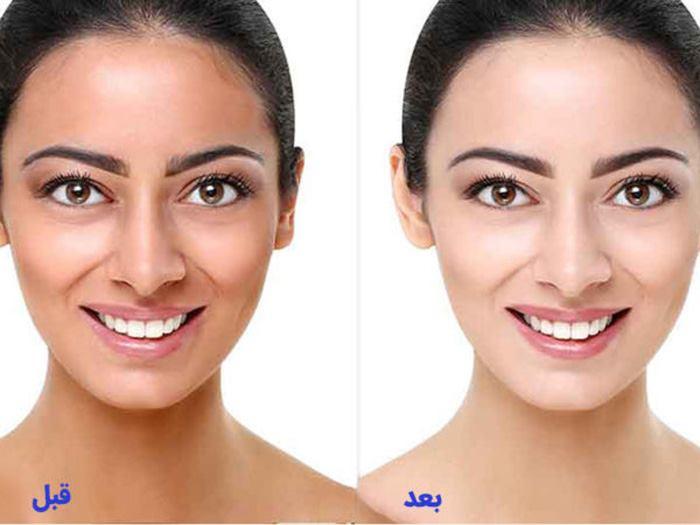 قبل و بعد استفاده کرم روشن کننده پوست