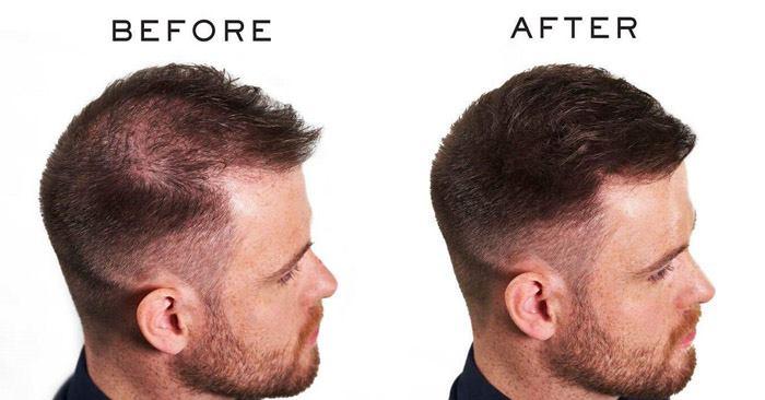 پرپشت کردن موی سر با پودر و اسپری