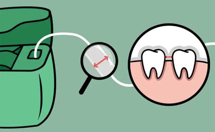 ضخامت نخ دندان